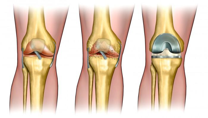 artrozė pirmojo laipsnio gydymo liaudies gynimo osteochondroze masazas