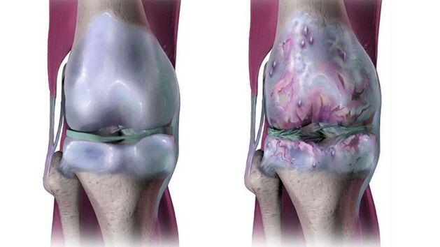 artrozė jo gydymo bendra pėdų gydymo