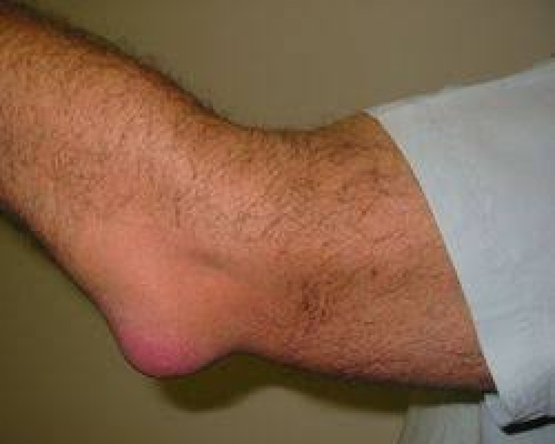 swelling in joints on right side of body