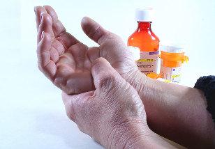 artrozė sukelia ligų ir gydymo metodų