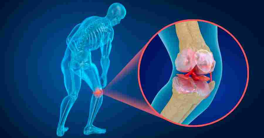 kaip pašalinti skausmą su sąnarių uždegimas sustav traumos pedikiūras