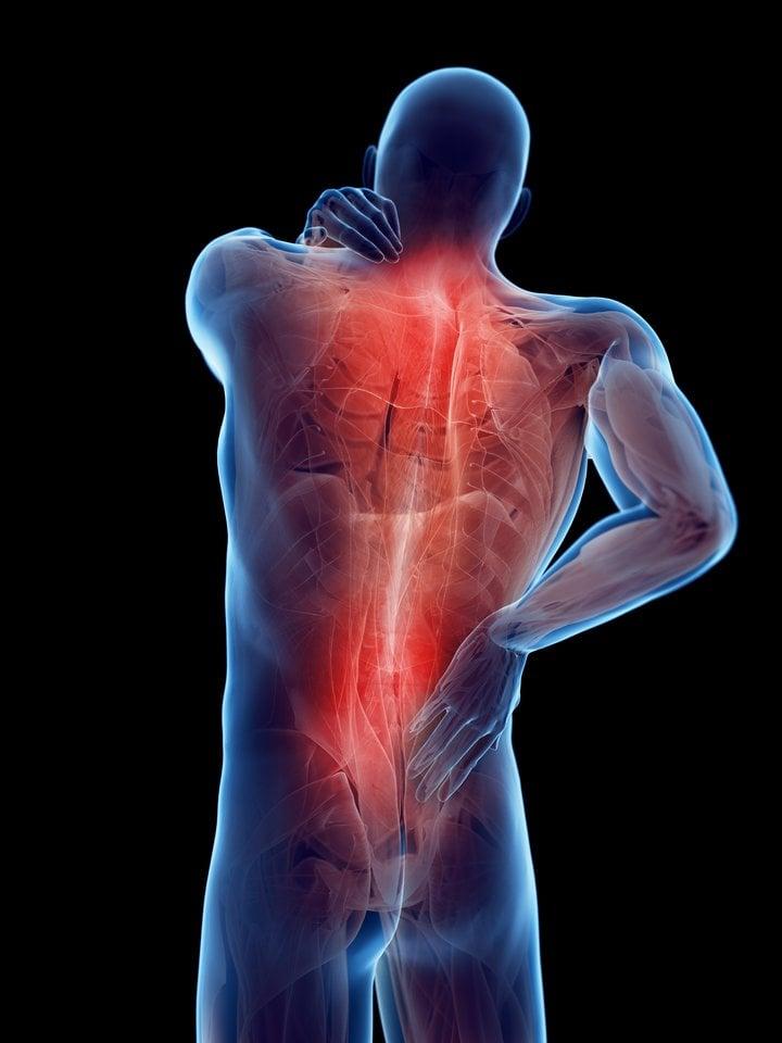 osteochondrozė kuris tepalas padės