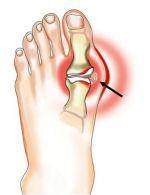 gydymas uždegimas pėdų sąnarių infekcinės ligos sąnarių kaulų