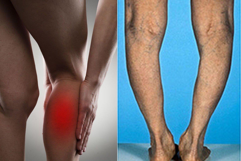 gydymas artrozė pirštais tautų