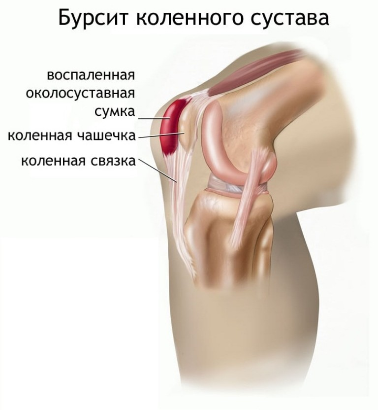 artrozė ir pėsčiomis gydymas