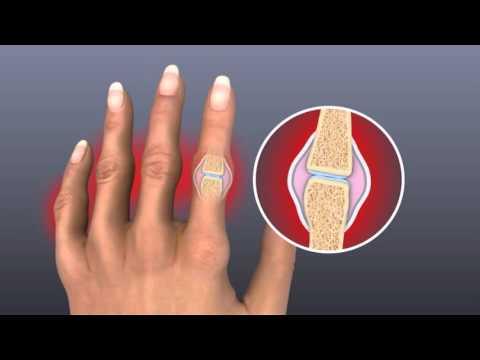 edema painful joints homeopatija skauda sąnarį