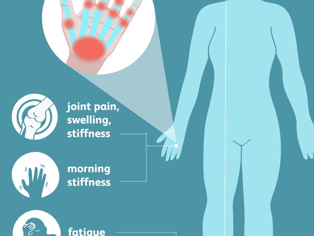 edema painful joints kaukės sąnarių gydymo