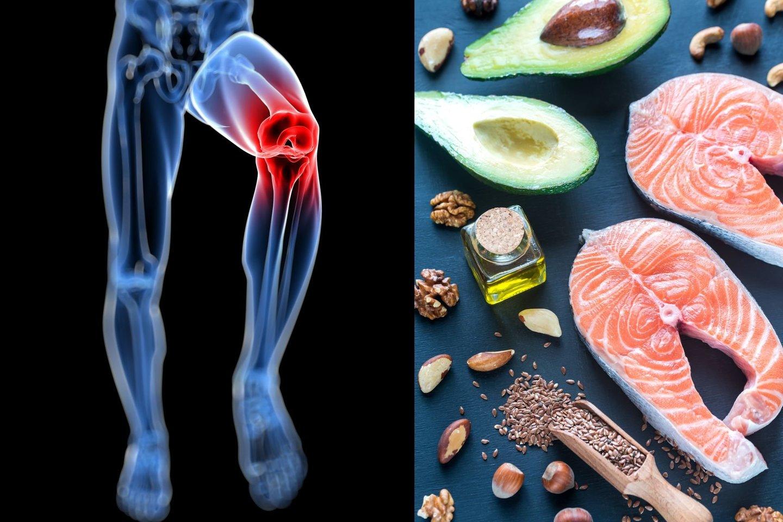 kas maistas turėtų būti naudojamas su skausmus sąnariuose jei skauda šlaunis jungtiniame