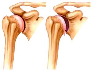 liaudies medicinoje artrozės peties sąnario gydymo uždegimas viso kūno sąnarių