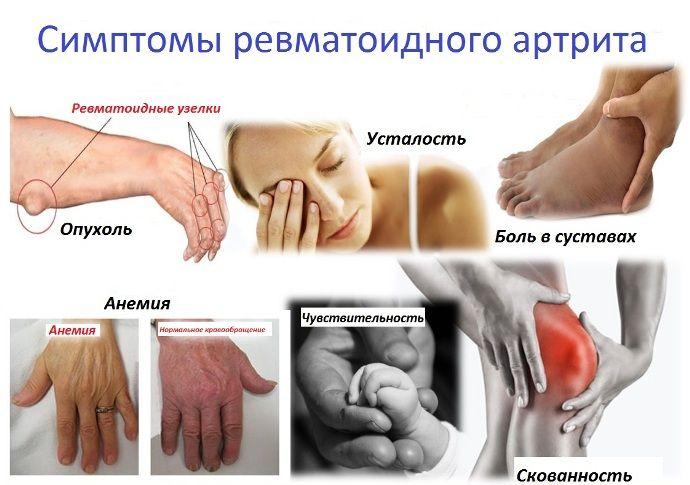 gelio artritu sąnarių