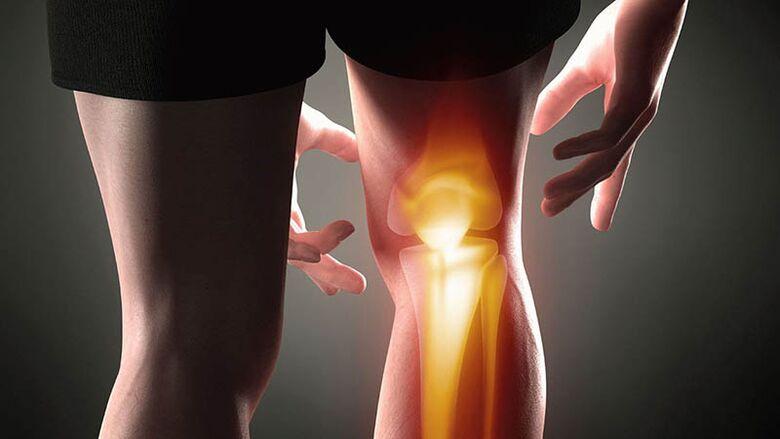 vištienos kojos sujungimų gydymas