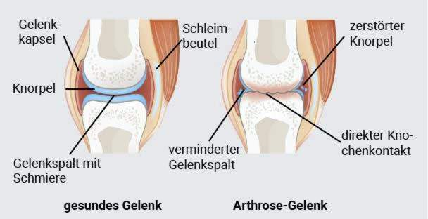 hls apie osteoartrito gydymui