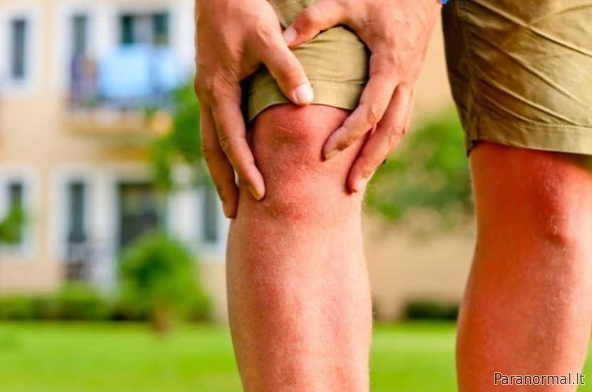 prevencija bendrą darbą artritas pasireiškia kaip rankų