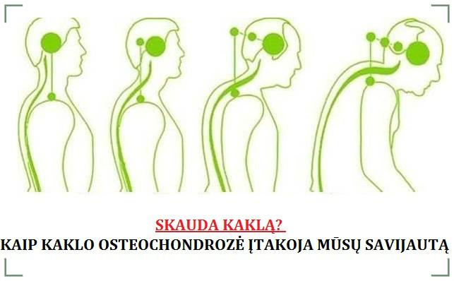 kaklo slanksteliu osteochondroze senio sąnarių