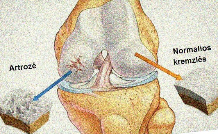 kas yra traktuojama artrozė sąnarių