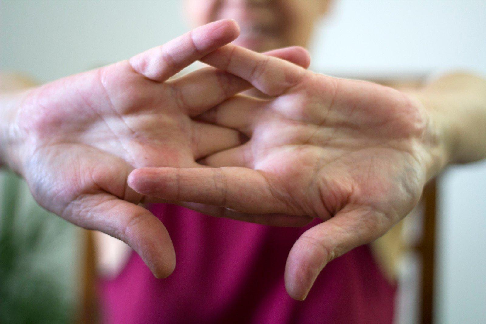 kaulų ir sąnarių į nykščio skauda sąnarių skausmas žarnyno ligos