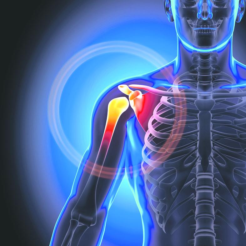 kaip atsikratyti sąnarių skausmas artrito liaudies gynimo gydymas artritas artrozė žmonėms