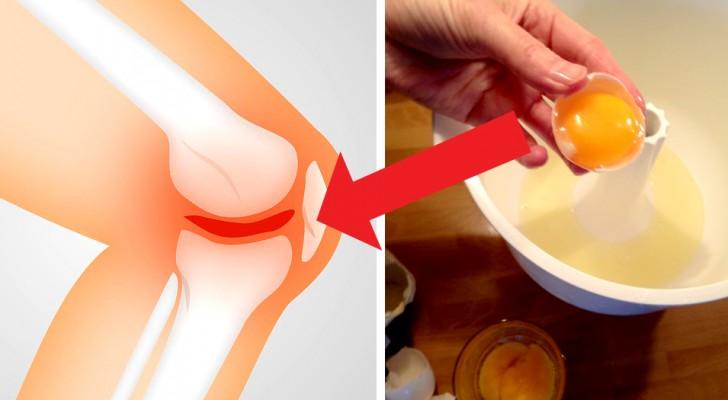 ne guzas bendra skauda kaip pašalinti patinimas su rankomis artritas