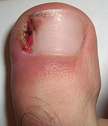 kojos nykscio nago skausmas crunching pirštai artritas