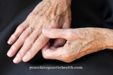 liga iš pirštų sąnarių kur skausmas atsiranda