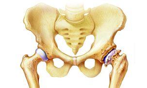 ūminis artrozė visų sąnarių