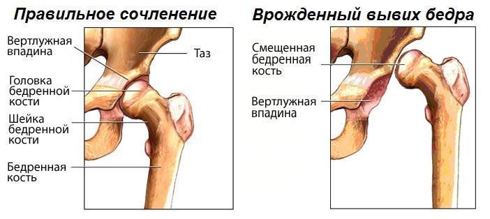 osteopathic gydymo metodas sąnarių šiugždesio sąnarių gydymo rezultatai