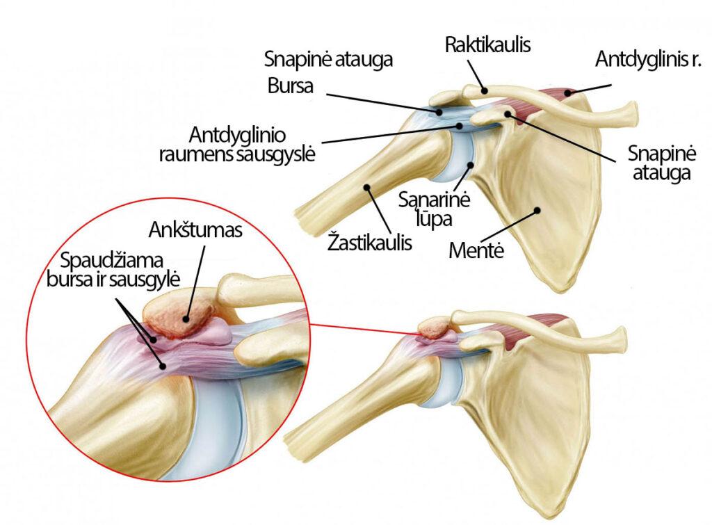podagra tyrimai rankos sužeistas artritas