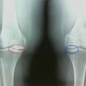 po to kai trauminio artrozės gydymo