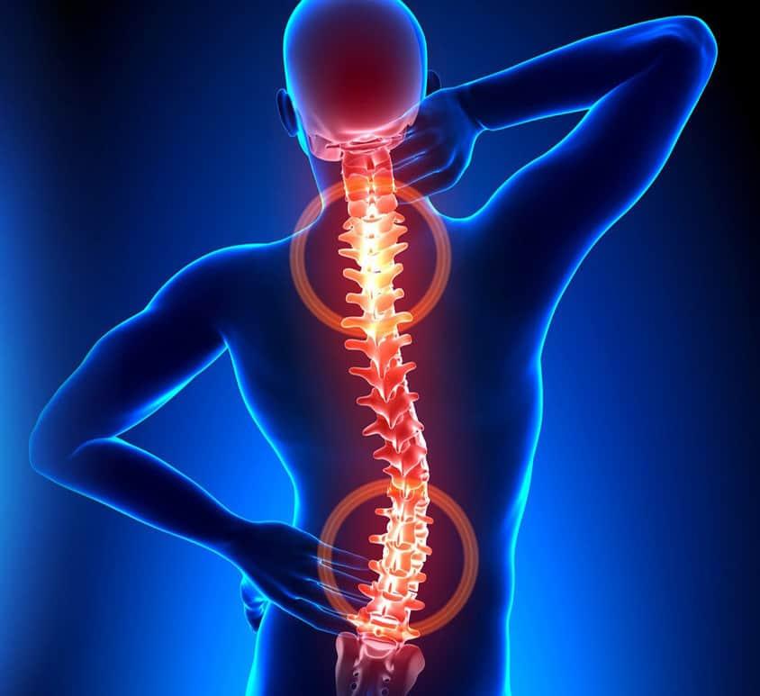pradžia gydymo osteochondrozės kur yra geriausia gydyti artrozės