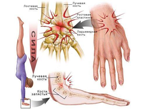 receptai sąnarių rankinių šepečių gydymo przeciwbólowy su sąnarių skausmas