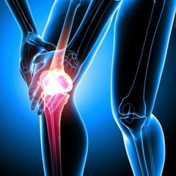 kremas nuo sąnarių skausmo dideliais kiekiais raumenų ligos ir sąnarių sąnarių