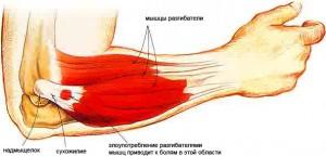 artritas piršto rankas po traumos