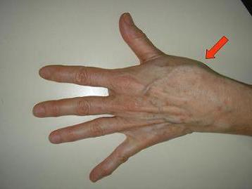 skausmas pirštų falangų sąnarių roe su artrozės siūlės