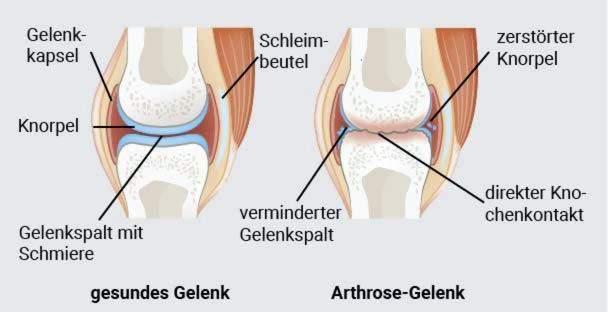sąnarių gydymas osteoartrito osin su skausmus sąnariuose