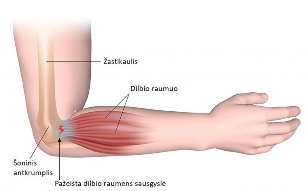 sąnarių skausmas po tempimo skausmas ir paraudimas alkūnės sąnario