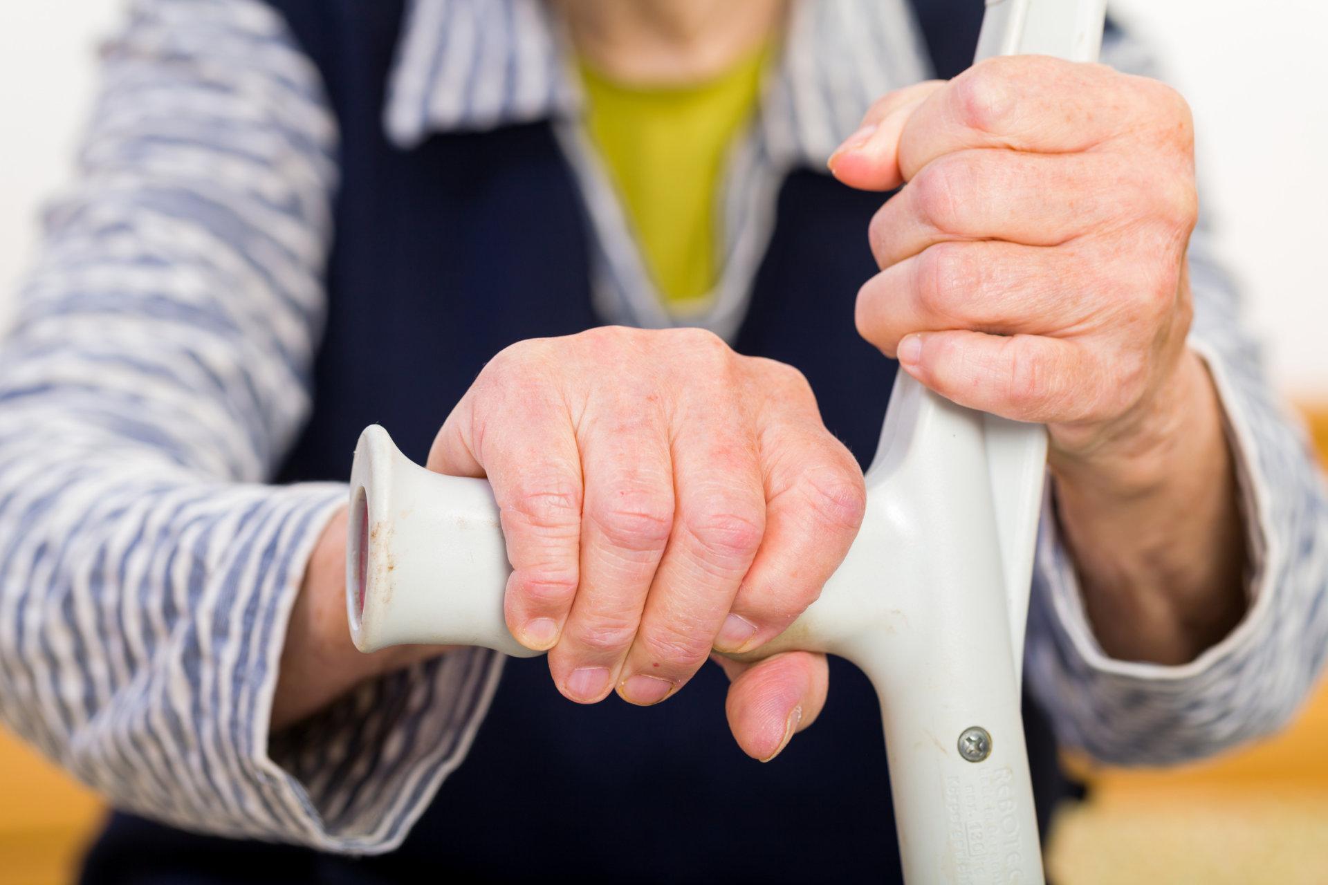 osteochondrozė