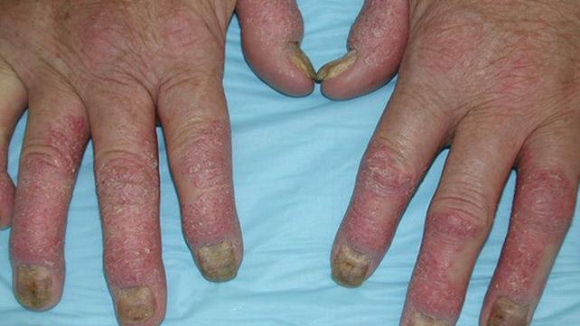 reumatoidinis artritas rankų gydymo liaudies gynimo priemones artritas piršto rankos kurios tepalas