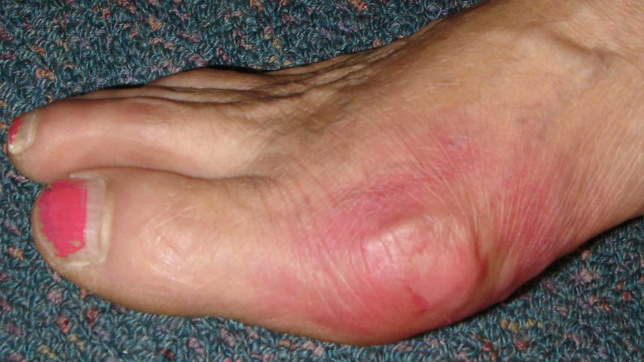 swelling painful joints in fingers and toes