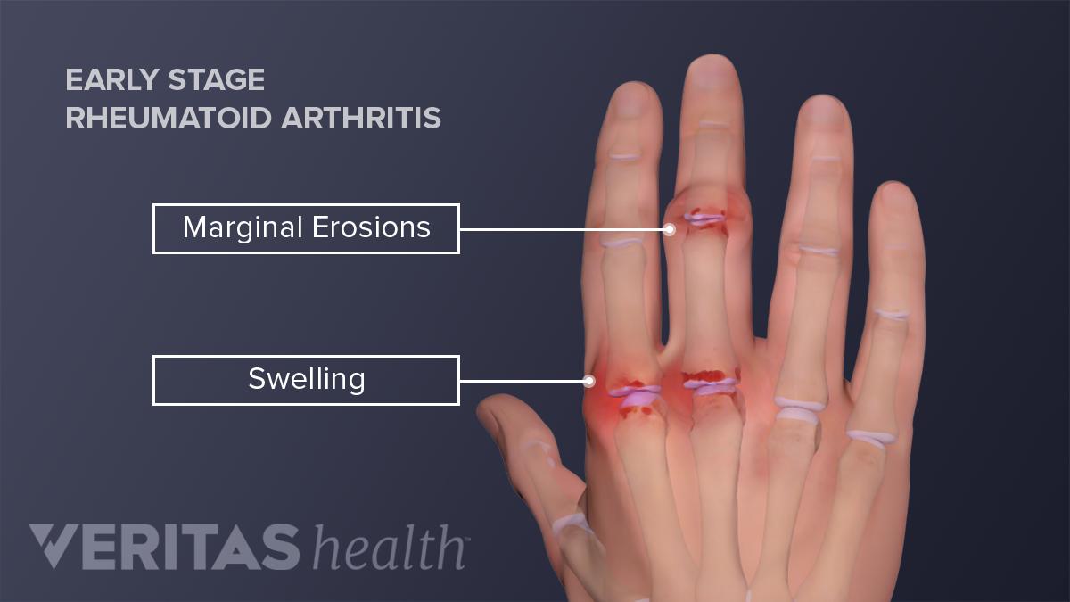 swollen painful knuckle joints žolės už pečių sąnarių gydymo